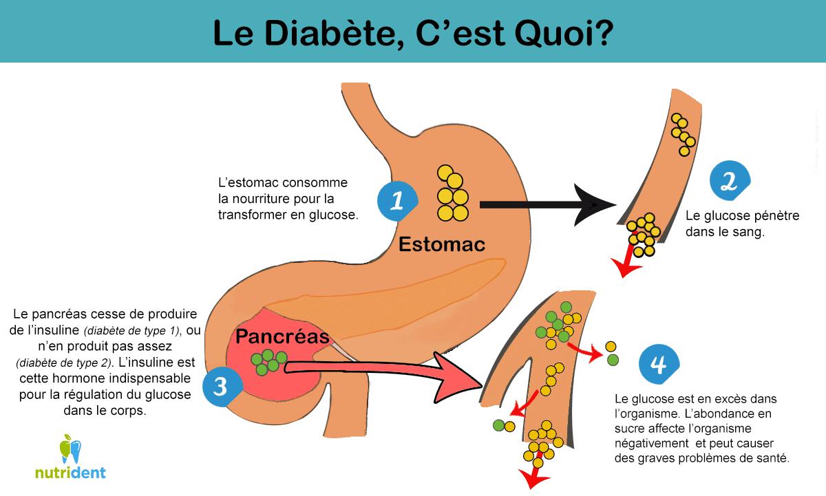 illustration qui décrit le diabète