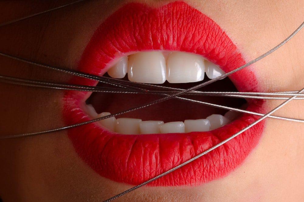 kyste dentaire, une bouche couverte d'acier
