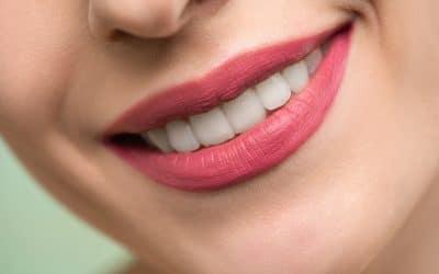 Limer les dents : tout ce qu'il y a à savoir sur le limage des dents