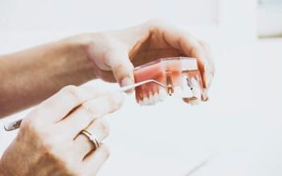 Comment Obtenir Des Implants Dentaires Moins Chers ?
