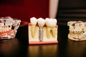 la pose d'un implant dentaire