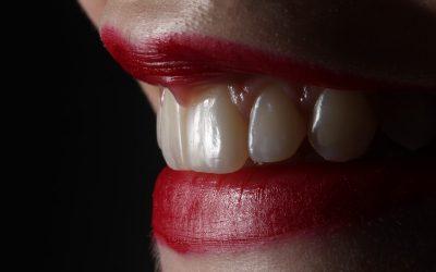 La Contention Dentaire: le passage nécessaire après un appareil dentaire