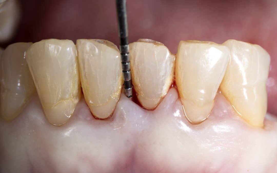 La Parodontite : Symptômes et Traitement