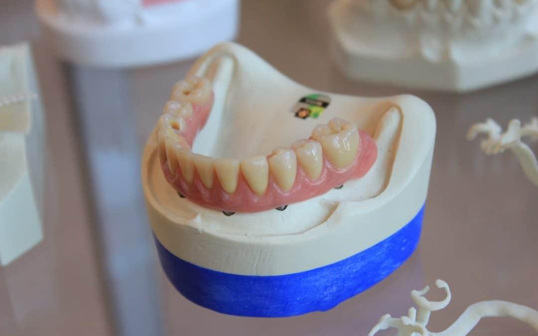 Dentier: Notre Guide Complet sur La Prothèse Dentaire Amovible