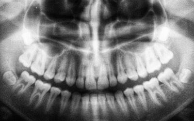 Radio Panoramique Dentaire: Tout Savoir