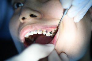 douleur appareil dentaire
