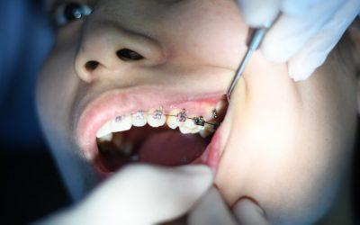 Comment soulager la douleur provoquée par un appareil dentaire